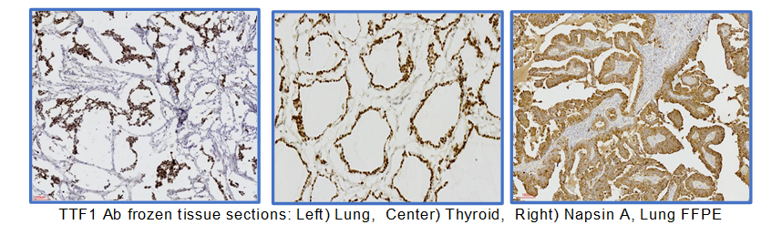 New Rapid ihcDirect(R) TTF1 and Napsin A histology tests for lung cancer diagnostics
